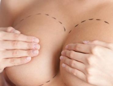 Модный подарок: новая грудь под елочкой