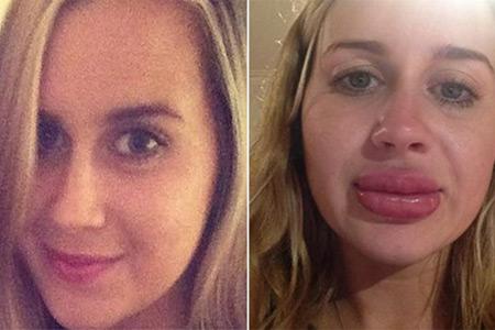 Как увеличить губы за 2 минуты